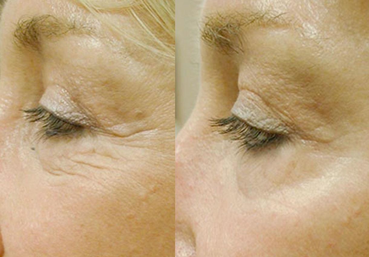 Laser Skin Resurfacing Plymouth Meeting