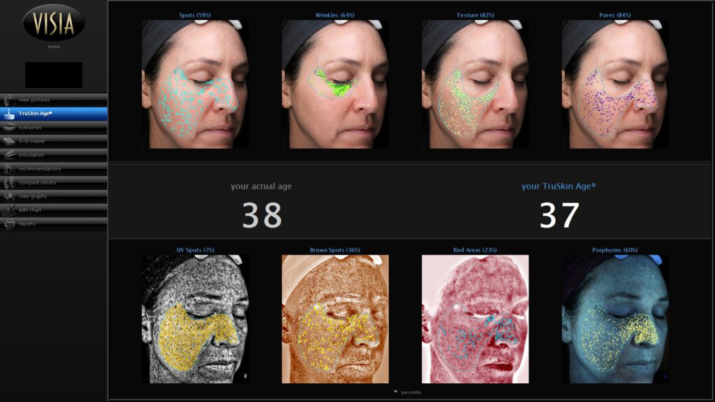 Scan After Treatment