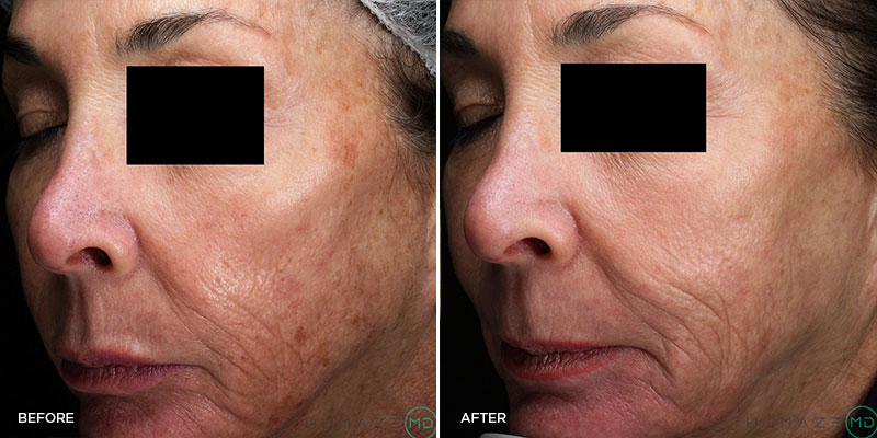 before_after_coolpeel