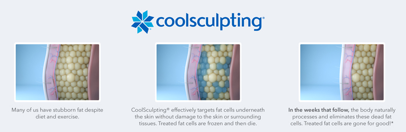 How-CoolSculpting-Works-Illustration